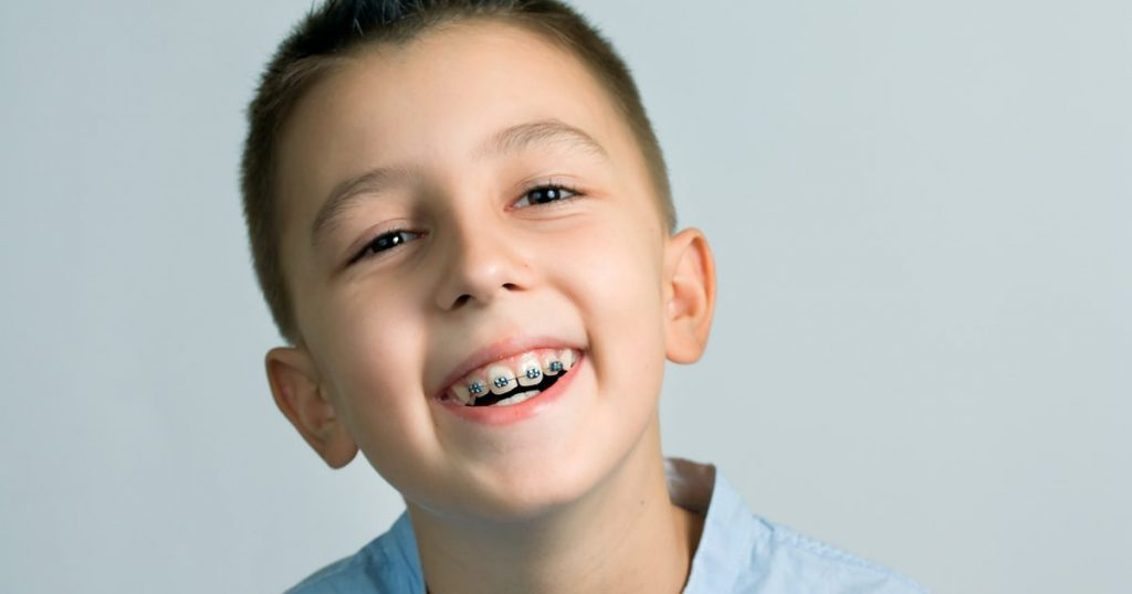 5 Ways You Can Assist Young Kid Avoid Needing Braces Eventually